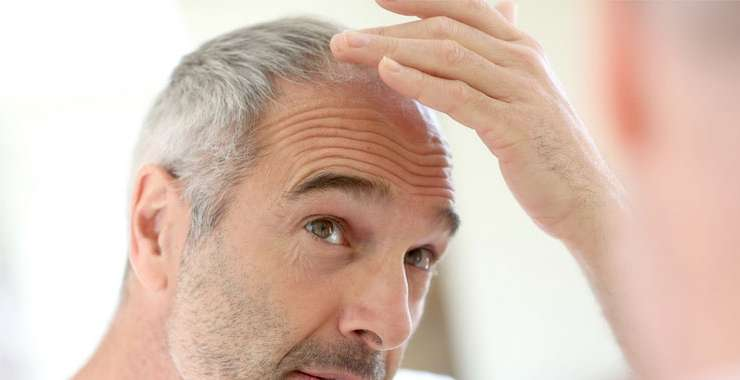 The Best Men's Hair Loss Solutions to Date