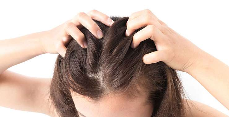All You Need To Know About Female Pattern Baldness