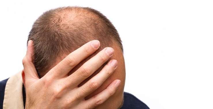 Can I Lose My Hair Due To Stress?