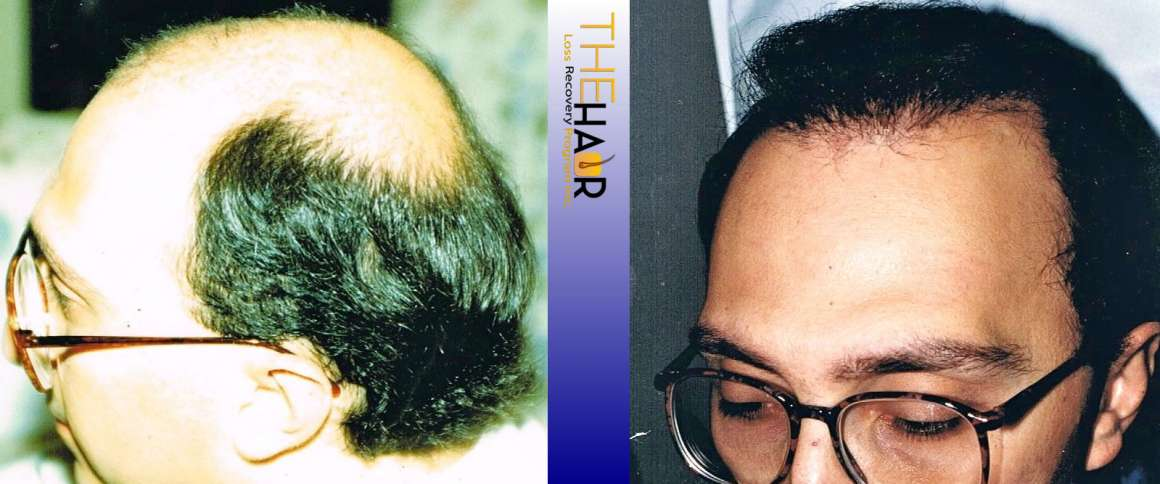 Hair Loss Recovery Before After Photo 1