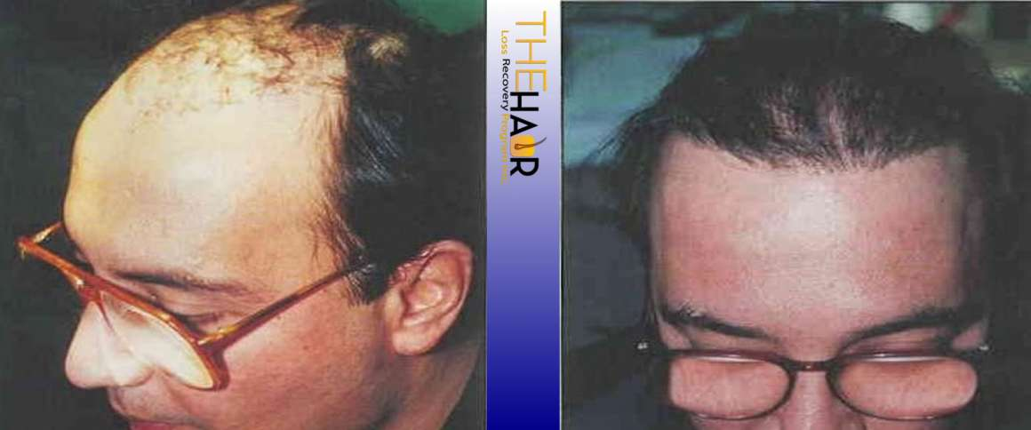 Hair Loss Recovery Before After Photo 10