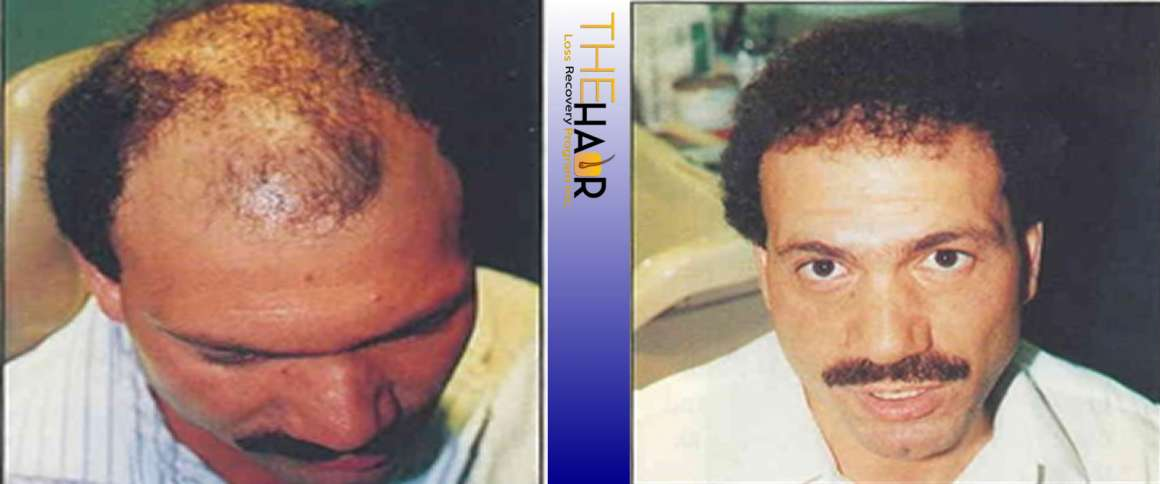 Hair Loss Recovery Before After Photo 2