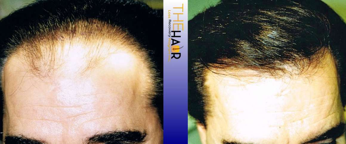 Hair Loss Recovery Before After Photo 3