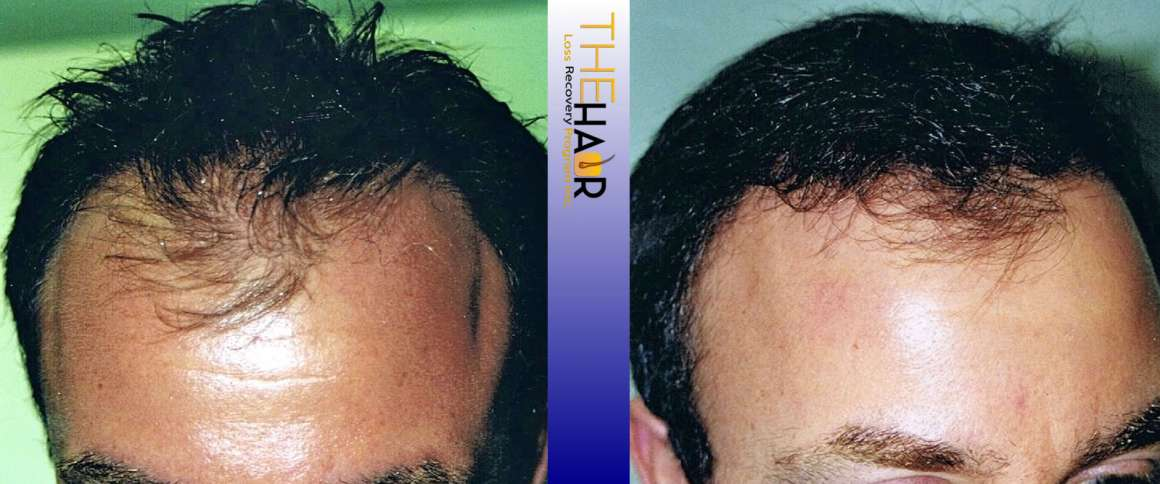 Hair Loss Recovery Before After Photo 4
