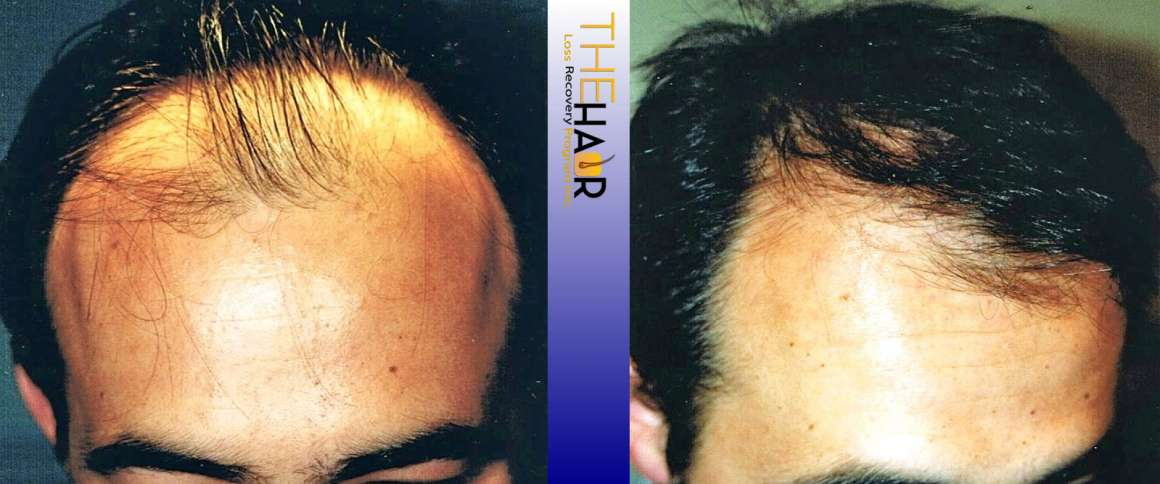 Hair Loss Recovery Before After Photo 5
