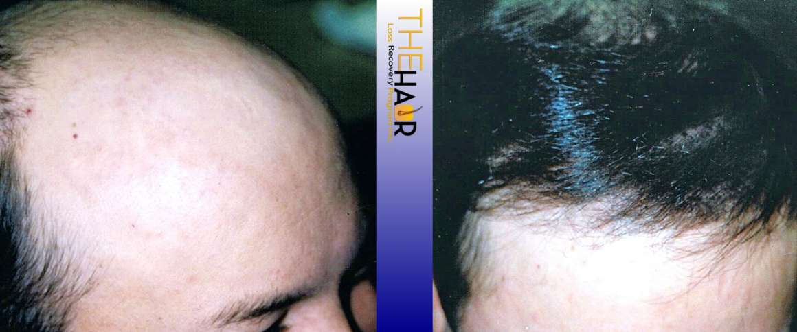 Hair Loss Recovery Before After Photo 6