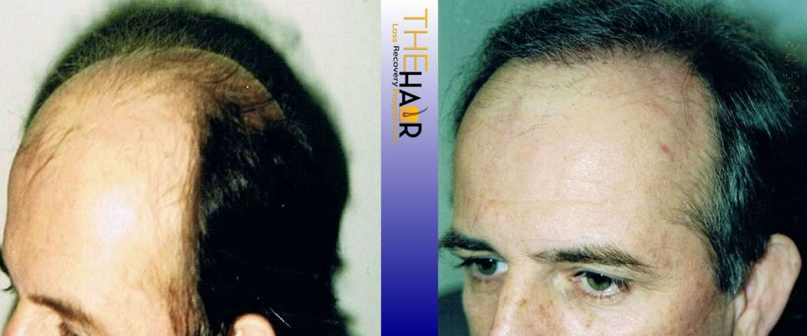 Hair Loss Recovery Before After Photo 7