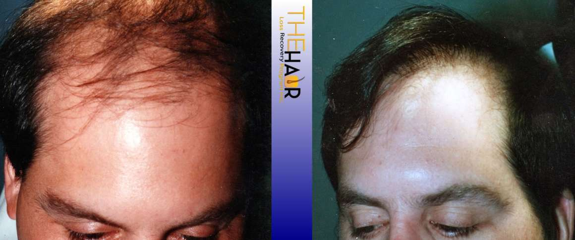 Hair Loss Recovery Before After Photo 8