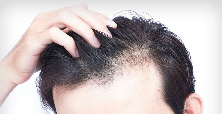 How can I Take Time from my Busy Schedule to Have a Hair Transplant?