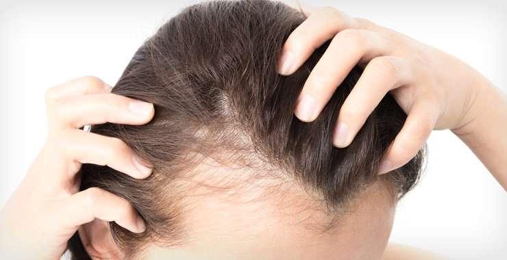 Handling Women's Hair Loss