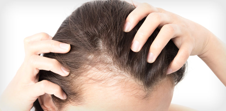 Handling Women's Hair Loss