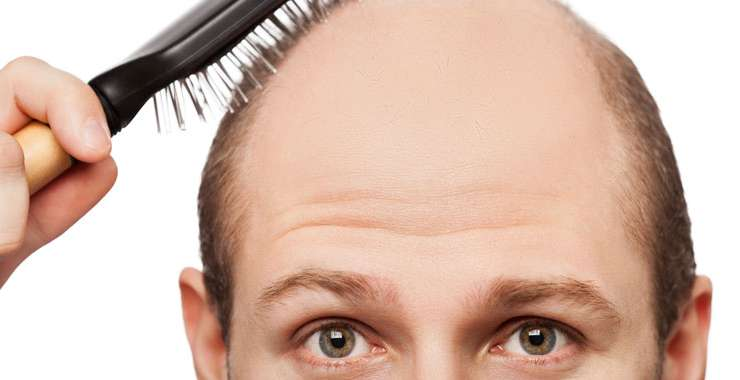 Is There a Perfect Age to Get Hair Transplant Surgery?