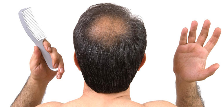 Medical Hair Loss Recovery