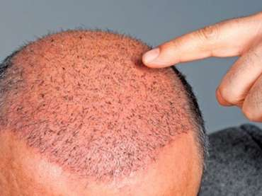 Surgical Hair Loss Recovery