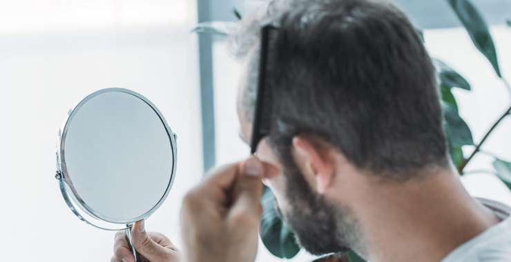 Ways to Look Good Even with Hair Loss