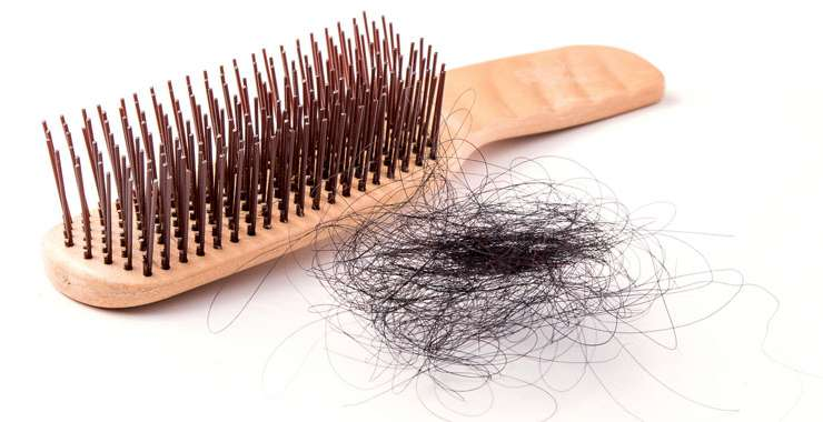 What Amount Of Hair Loss Is Normal?