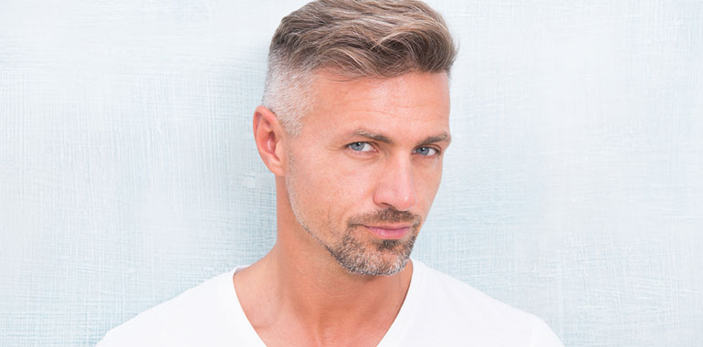 What You Should Know About Modern Hair Transplants